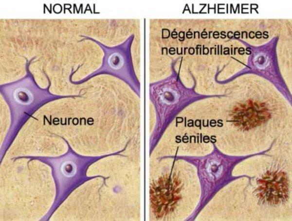 Alzheimer-Cerveau-2