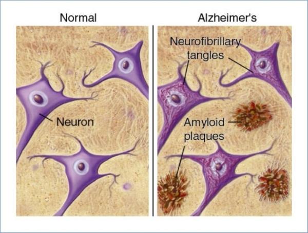 cauza bolii alzheimer-